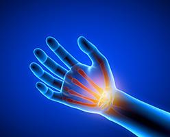 Terapia ręki i fizjoterapia dłoni w Warszawie